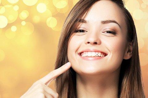 Ragyogó mosoly Swarovski fogékszer felhelyezéssel