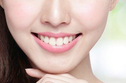 Ragyogó fogsor fogkő-eltávolítással