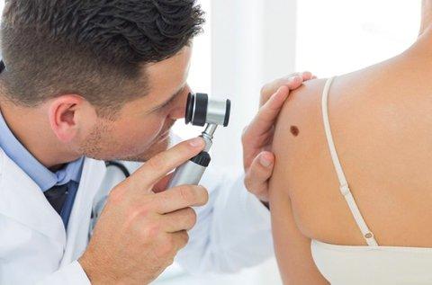 Anyajegyszűrés teljes testen, konzultációval
