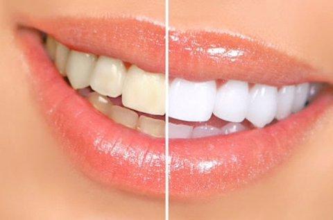 Luma Smile fogfehérítő és polírozó készlet