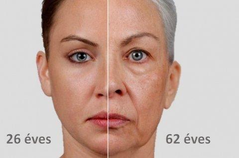 Hyalurox lézeres arckezelés 3 alkalommal