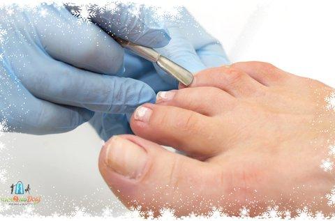 Yag lézeres körömgomba elleni kezelés