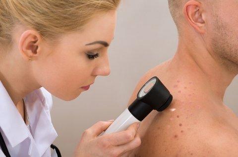 Melanoma vagy más bőrbetegségek szűrése