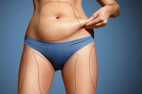 Kavitációs zsírbontás hason vagy combon