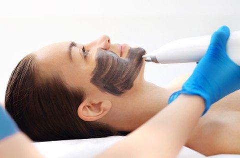 Intenzív arcfiatalító lézeres karbon peeling kezelés