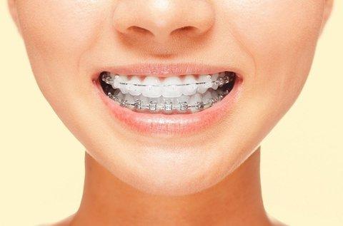 Fém vagy porcelán fogszabályozás 1 fogíven