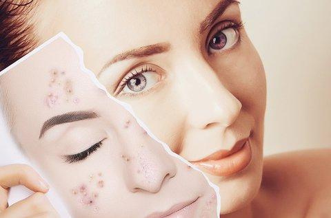 Akne és pattanás eltüntető kezelés teljes arcon