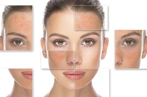 10 alkalmas arcfeltöltés hyaluronnal és kollagénnel