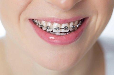 Fém brackettekből álló rögzített fogszabályozó