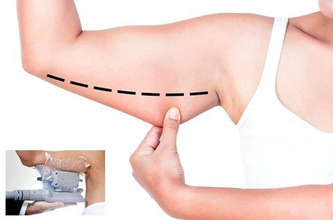 Felkar feszesítő, fogyasztó kezelés zsírfagyasztással