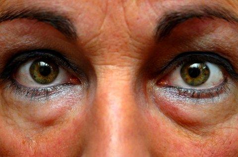 Ödémás, karikás szemek kezelése rádiófrekvenciával