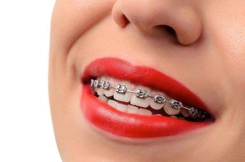 Fém brackettekből álló fogszabályozó 1 fogívre