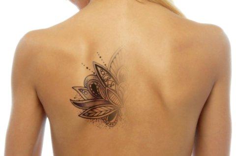 Szuper erős Yag lézeres tetoválás eltávolítás