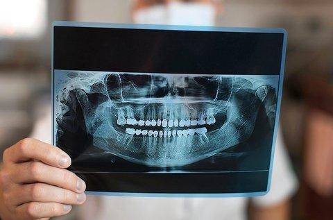 Digitális panorámaröntgen készítése