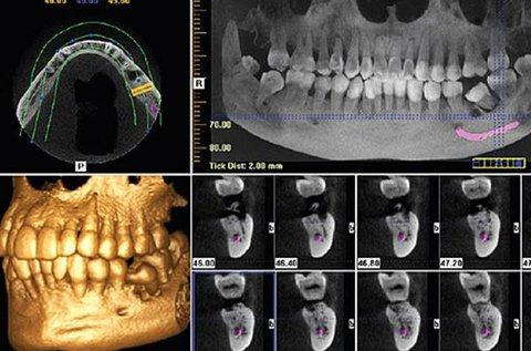 3D Cone Beam fogászati CTvizsgálat