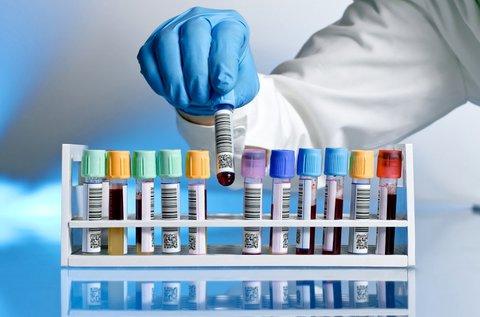Emésztési problémák alapcsomag teljes vérképpel